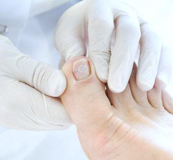 broken foot nail